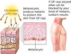 how we sunburn